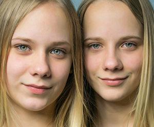 Hermanos gemelos de gran parecido físico presentan, intelectual y moralmente, caracteres muy diferentes entre sí y sus progenitores.